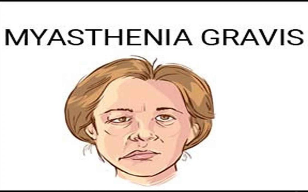 Know about Myasthenia Gravis (Muscle Weakness)