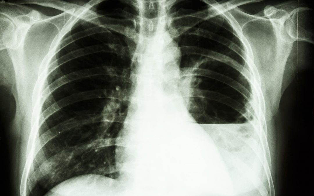 Do you know about Lung Abscess?