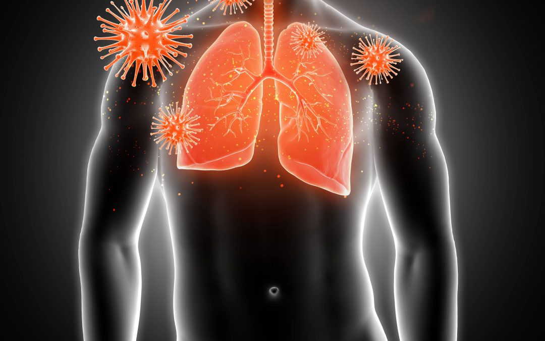 Do you know what the major causes of Lung Cancer are?